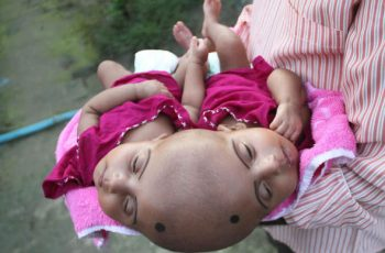 Bangladesh doctors prepare to separate twins with fused heads